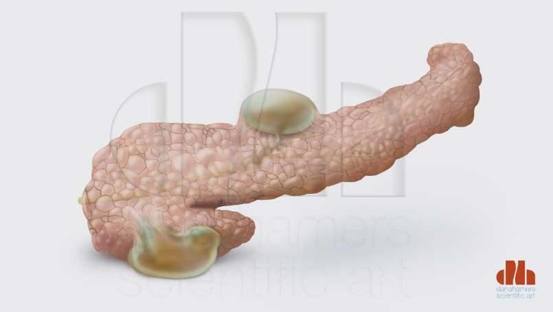 pseudocyste pancreas